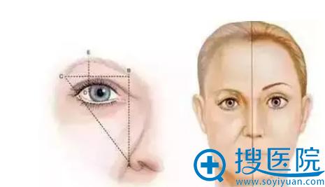 提眉术提升眼角手术示意图