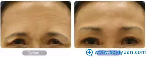 提眉术祛除鱼尾纹案例对比