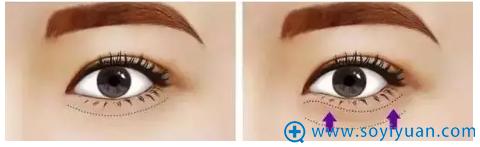 提眉术祛除多余脂肪示意图