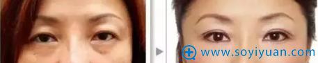 提眉术预防眉老案例
