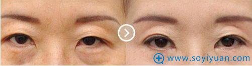 郑州天后整形美容医院提眉术对比效果