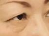 能够抵抗眼部衰老的提眉术对外貌的影响及手术注意事项