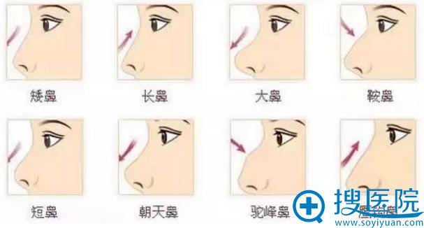 影响侧面颜值的鼻型有哪些