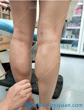 深圳美莱王晔注射瘦腿针术前标记