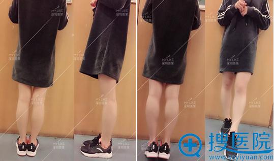 深圳美莱瘦腿针术后半个月腿部特写