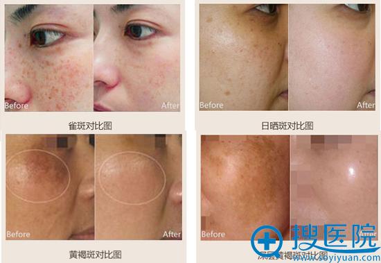 宁波美苑综合祛斑法治疗案例