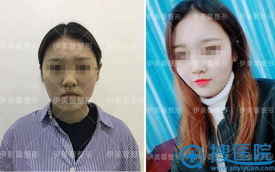 武汉伊美馨面部吸脂术前术后对比照片