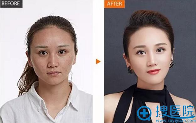 24岁张女士在华韩做线雕效果