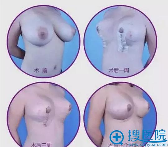 深圳广和尹卫民垂直切口法巨乳缩小术
