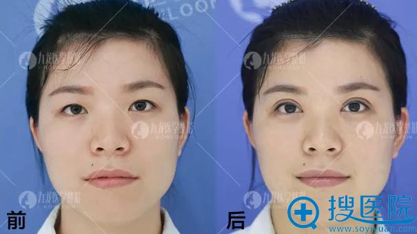 珠海九龙梁富荣双眼皮案例一周恢复效果