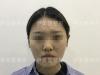 武汉伊美馨面部吸脂手术 我从大脸怪变小脸的秘密