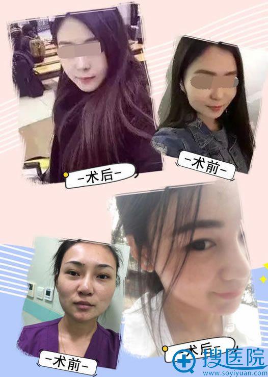 新星靓徐艳梅注射瘦脸针案例
