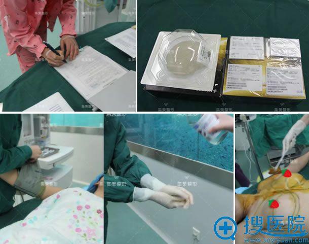 假体隆胸手术术前准备过程
