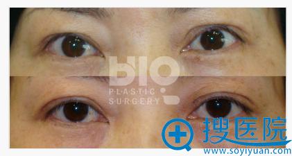韩国BIO曹仁昌院长双眼皮失败修复案例对比图