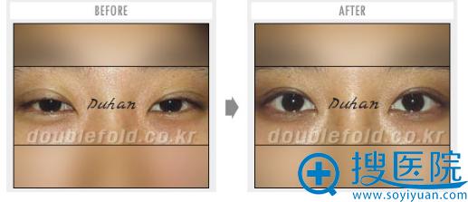 韩国dh申枓翰双眼皮失败修复案例