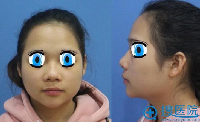 手术前拍照与术后对比