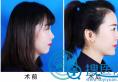 真人实拍:在潍坊医学院做完隆鼻的她们,轻松从路人逆袭成明星