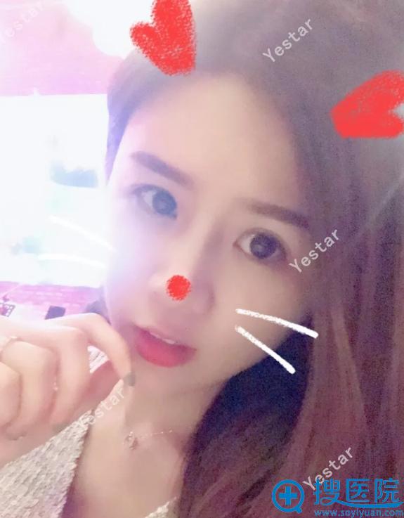 北京艺星歪鼻修复手术15天恢复照