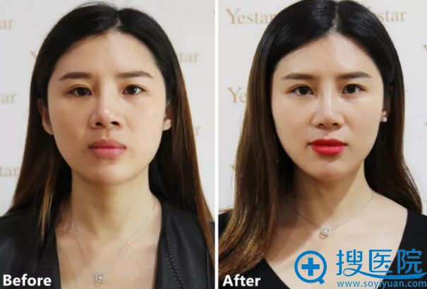 艺星歪鼻修复手术前后效果对比