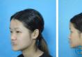 20天进阶小仙女全靠郑州阳光整形杨小顺综合美眼+鼻综合手术