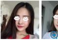 大四毕业前去上海九院整形科找濮哲铭医生做了鼻综合隆鼻手术