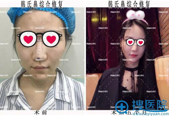 北京韩啸鼻综合修复5个月效果对比图