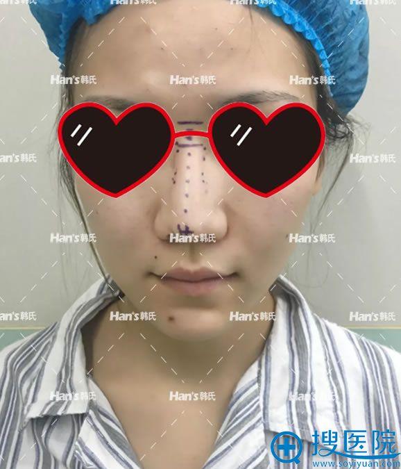 假体隆鼻失败照片