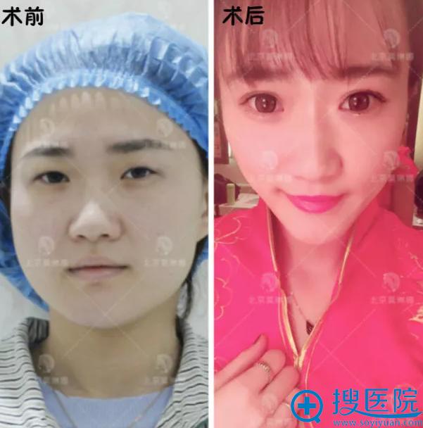 北京莫琳娜李辉医生双眼皮案例