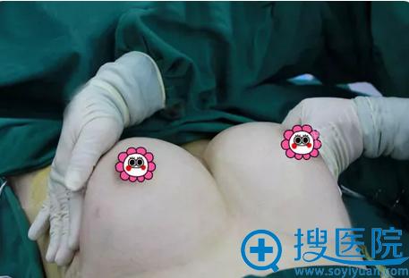 脂肪填充胸部术后即刻照片