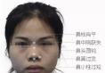 温州东方孙华刚肋软骨重建鼻中隔、重塑鼻头鼻尖手术详细介绍