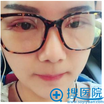 胡斌医生割完双眼皮第4天恢复情况