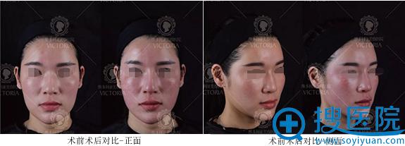 南京维多利亚玻尿酸注射前后对比照片
