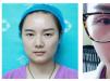 上周去郑州医德佳医院找胡斌医生割了双眼皮13天就恢复自然了