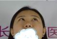 只是在长沙真爱做了个硅胶隆鼻 我的变化竟然这么大