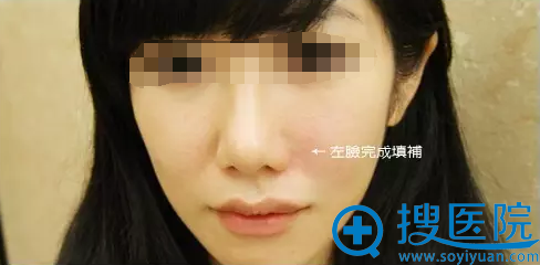 玻尿酸填充法令纹半边脸效果