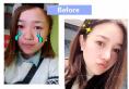 塌鼻子又爱玩抖音的姐姐找上海美莱整形医院卢建做了鼻综合隆鼻