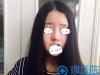 塌鼻妹在南京韩辰做硅胶自体耳软骨隆鼻术后上演侧颜杀