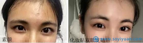 做双眼皮前素颜、化妆照对比