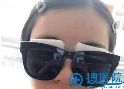 做双眼皮手术可以准备一副魔镜遮丑
