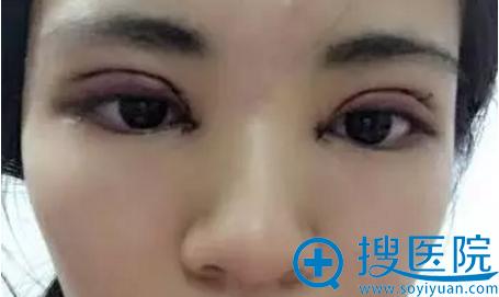 双眼皮手术纱布拆除后效果