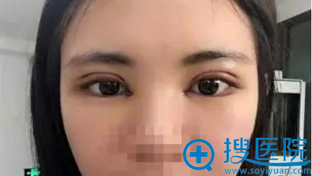 扬州美贝尔双眼皮术后4天照片