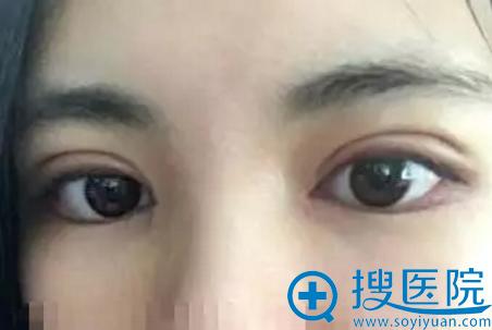 双眼皮手术拆线效果