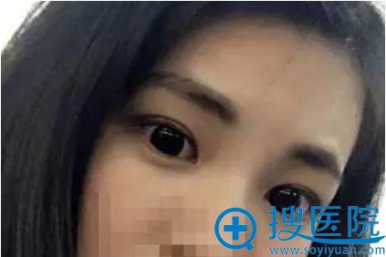 双眼皮术后恢复化妆效果