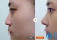 给鼻子一个机会,到南京康美改变鼻型,做个气质女神!