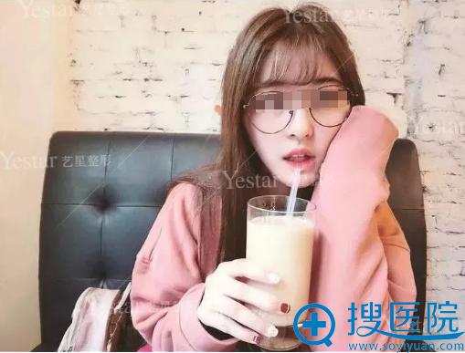 济南艺星瘦脸针注射20天效果图