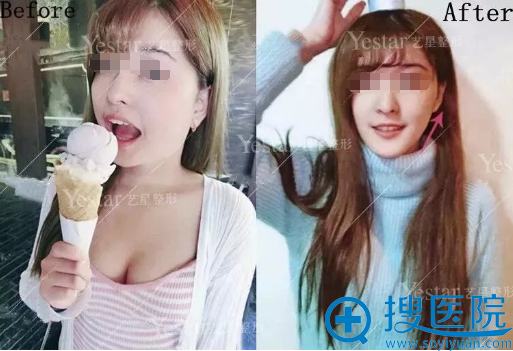 济南yestar注射瘦脸术前术后对比照片