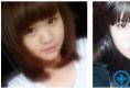 激动分享长春中妍刘晓吉院长给我做的双眼皮和隆鼻案例效果图片