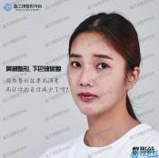 韩国高兰得鼻修复+下巴假体取出+下巴玻尿酸的刻骨铭心经历