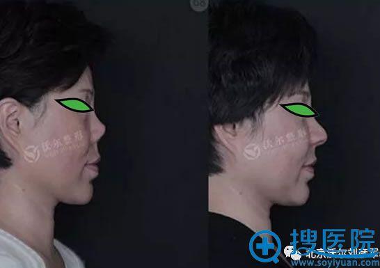 北京沃尔刘彦军鼻畸形修复案例