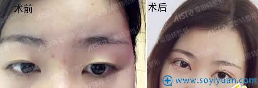 无锡爱思特双眼皮术前术后对比
